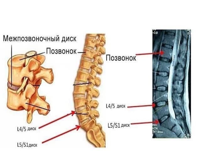 l5 s1 csukló ízületek artrózisa lábfej ízületi gyulladás